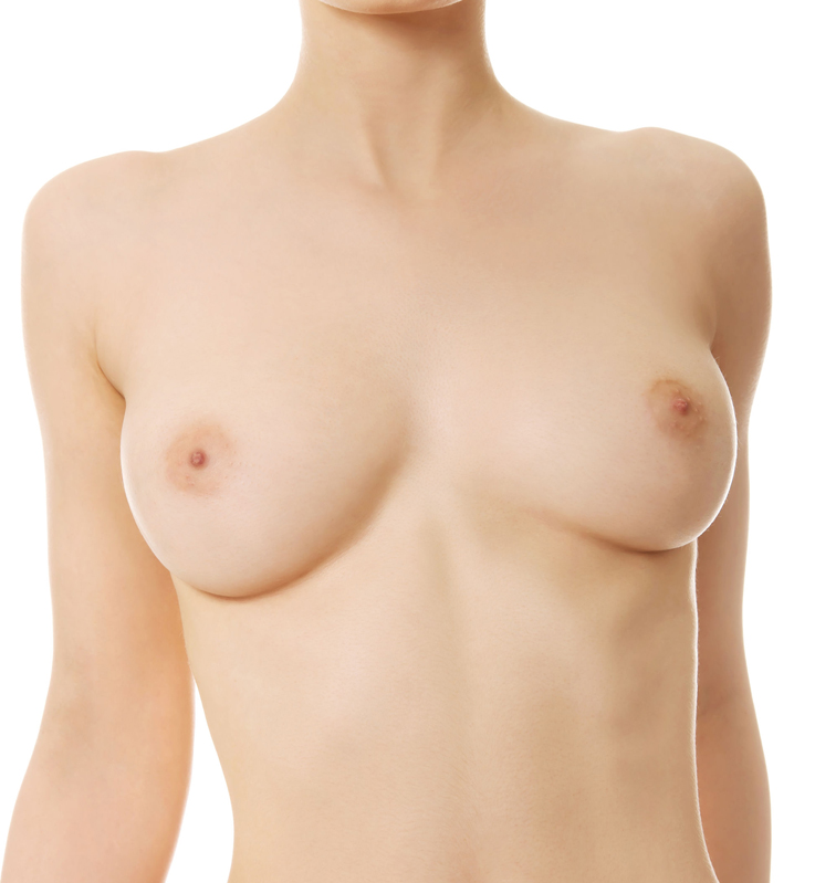 augmentation sein prothèse
