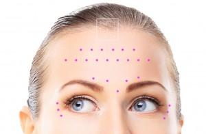 botox toxine rides rajeunissement facial