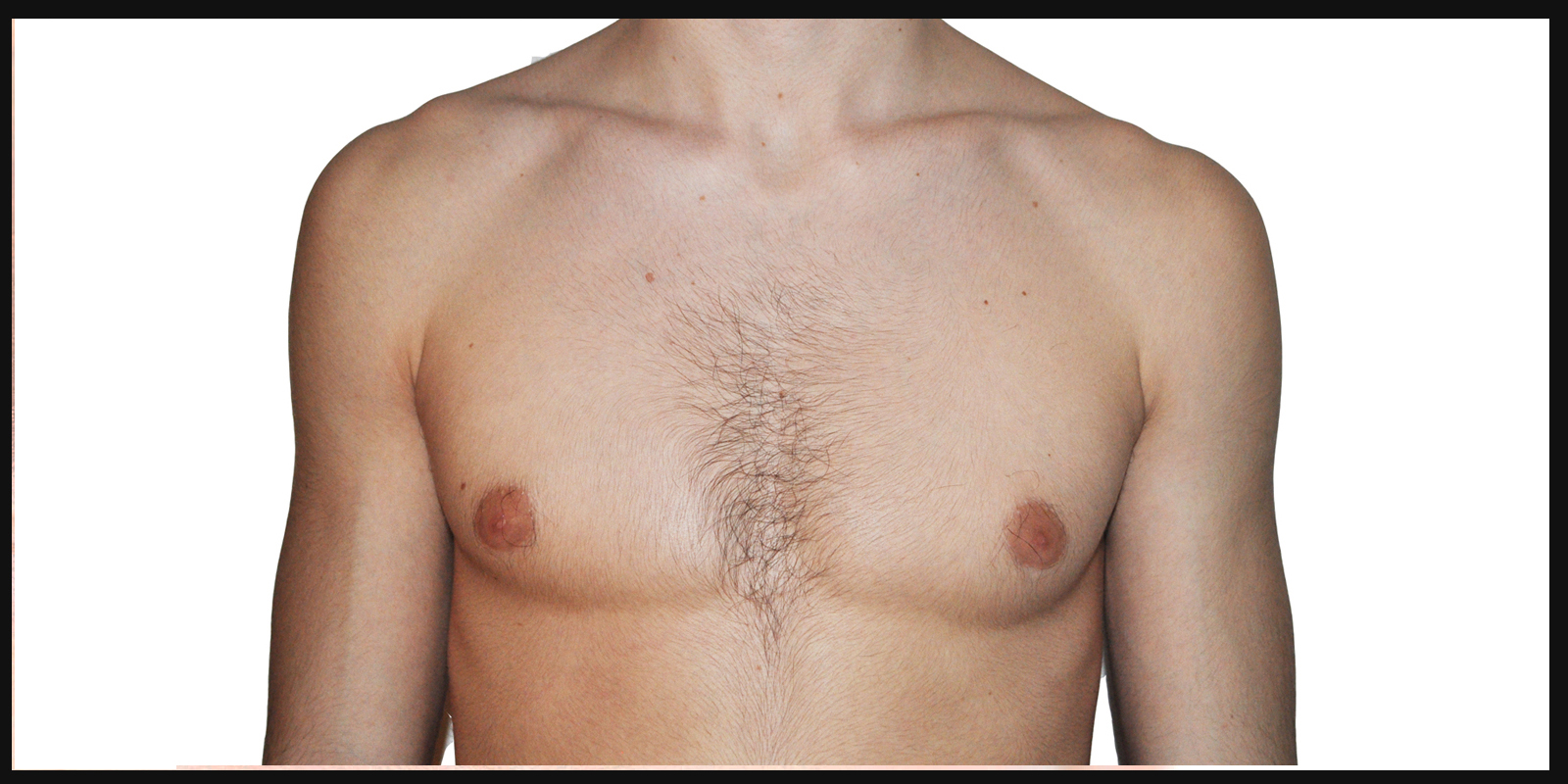 gynécomastie esthétique homme