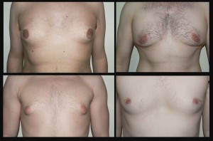 gynécomastie chirurgie esthétique homme
