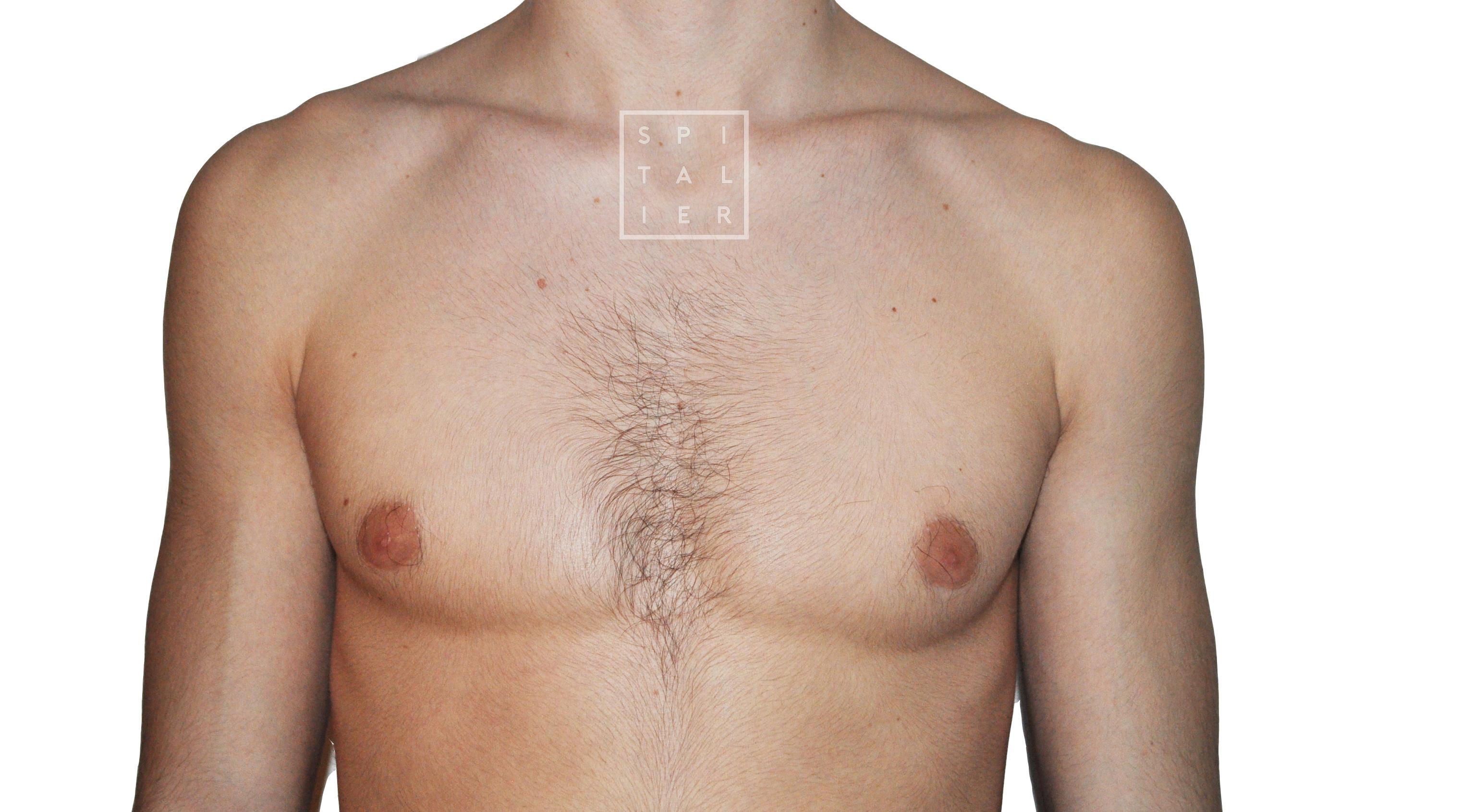 gynécomastie opérée par chirurgien esthétique Annecy genève et savoie