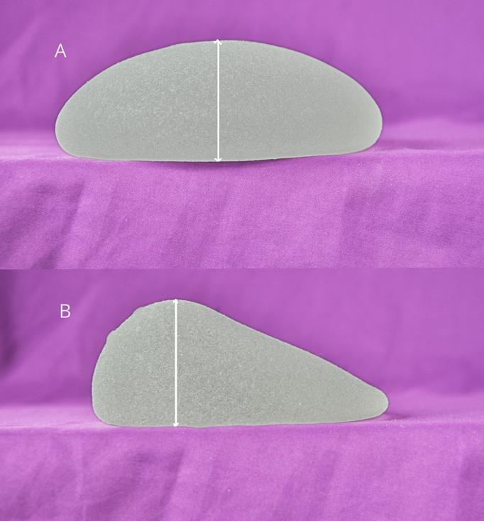 implant anatomique naturel