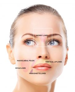 hyaluronic acid worrry lines nasolabial folds